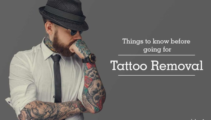 Things To Know Before Going For Tattoo Removal