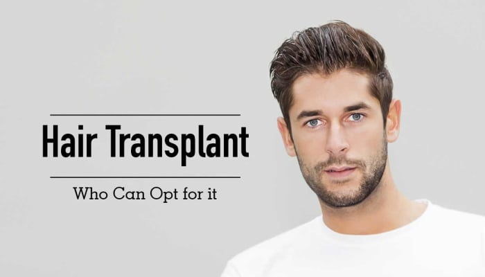 Hair Transplant - Who Can Opt for it