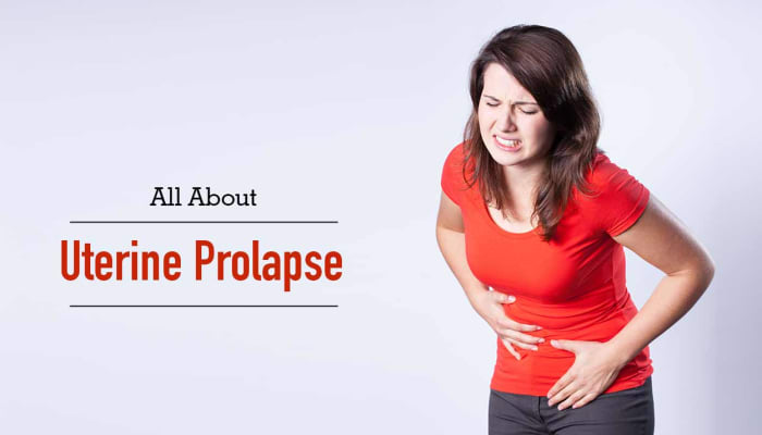 All About Uterine Prolapse