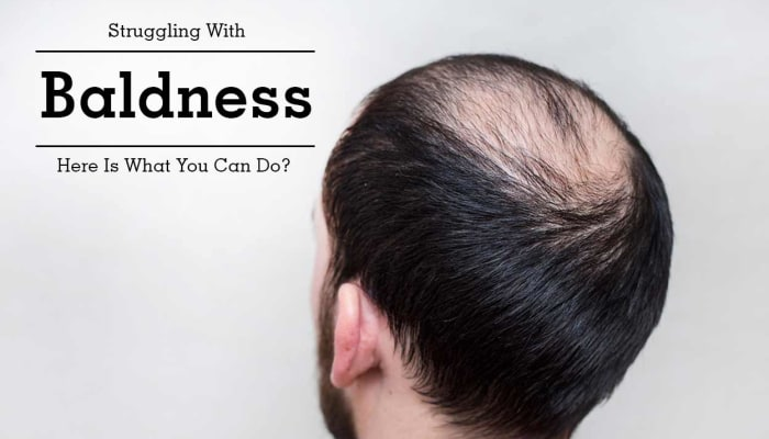 Struggling With Baldness - Here Is What You Can Do?