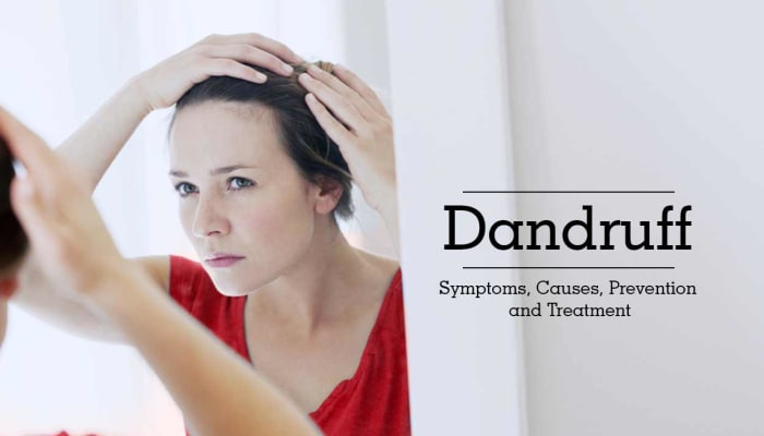 Dandruff: Symptoms, Causes, Prevention and Treatment