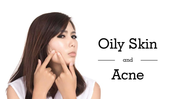 Oily Skin and Acne