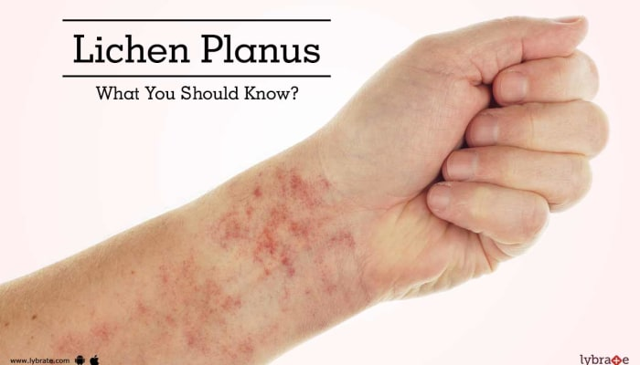 Lichen Planus - What You Should Know?