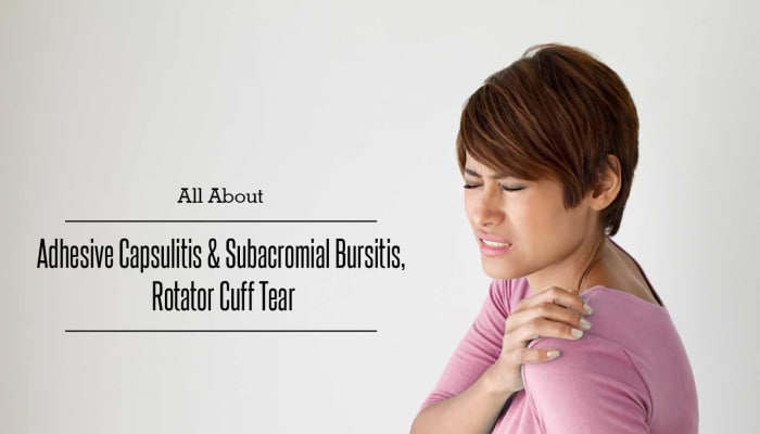 All About Adhesive Capsulitis and Subacromial Bursitis, Rotator Cuff Tear