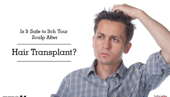 Is It Safe to Itch Your Scalp After Hair Transplant?