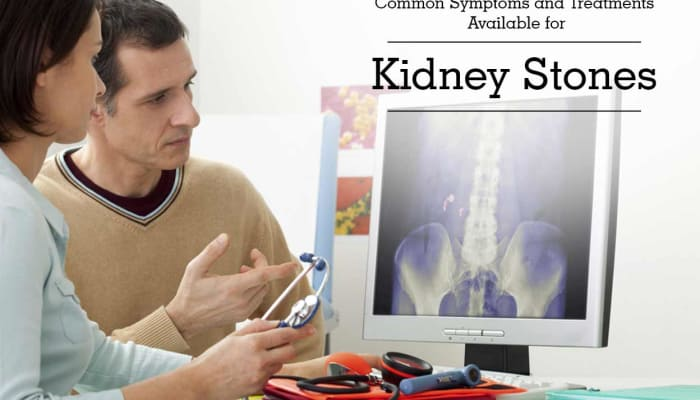 Common Symptoms and Treatments Available for Kidney Stones