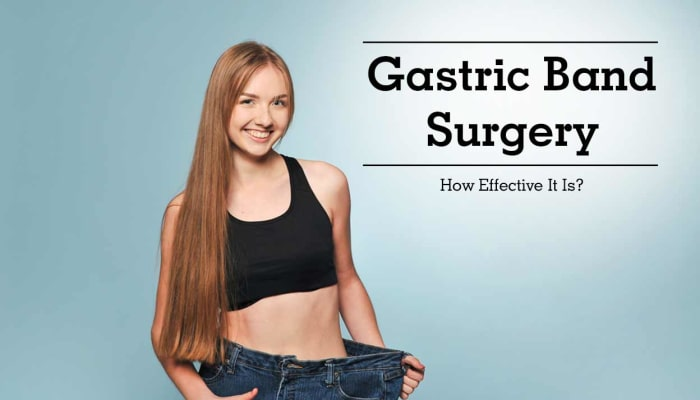 Gastric Band Surgery - How Effective It Is?