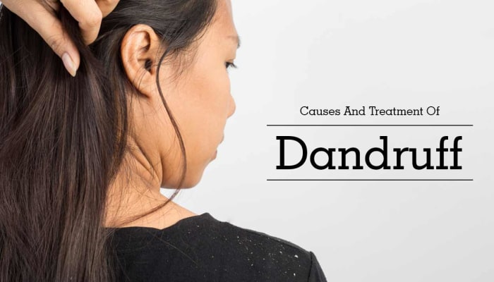Causes And Treatment Of Dandruff