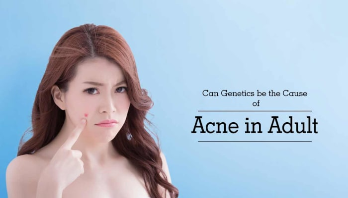 Can Genetics be the Cause of Acne in Adult