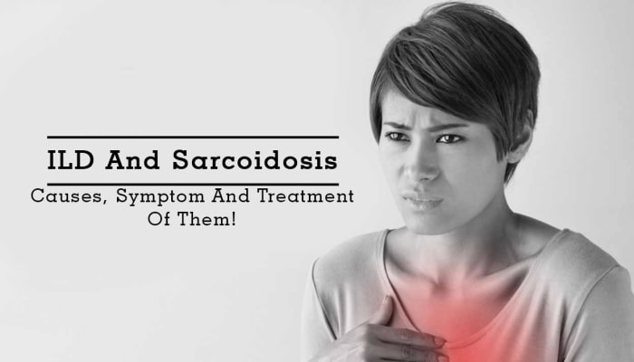 ILD And Sarcoidosis - Causes, Symptom And Treatment Of Them!
