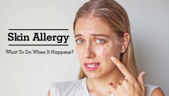 Skin Allergy - What To Do When It Happens?