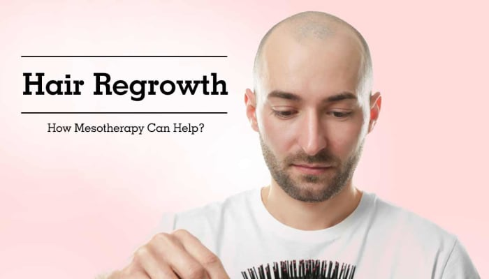 Hair Regrowth - How Mesotherapy Can Help?