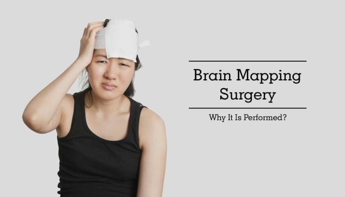 Brain Mapping Surgery - Why It Is Performed?