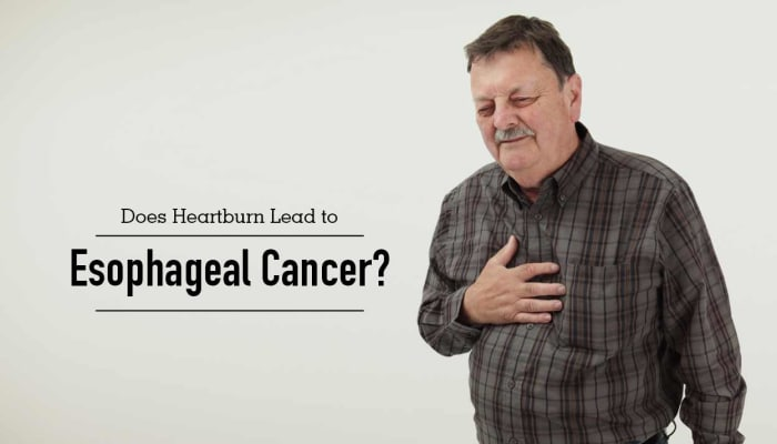 Does Heartburn Lead to Esophageal Cancer?