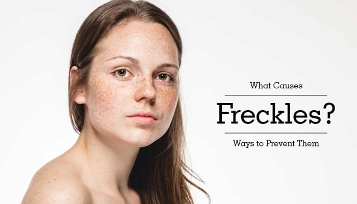 What Causes Freckles? Ways to Prevent Them