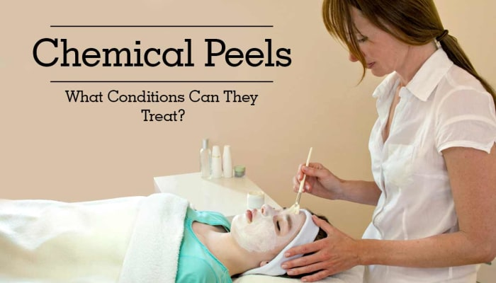 Chemical Peels - What Conditions Can They Treat?
