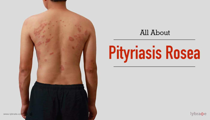 All About Pityriasis Rosea