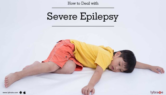How to Deal with Severe Epilepsy