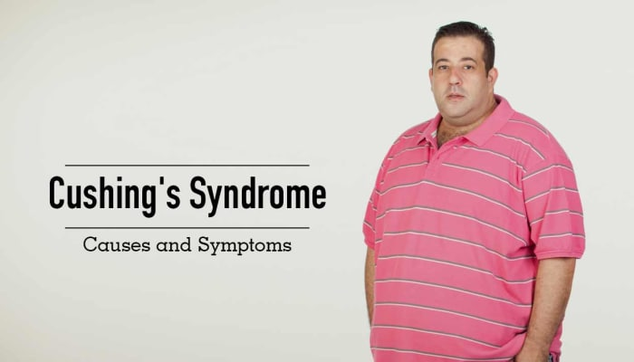Cushing's Syndrome - Causes and Symptoms