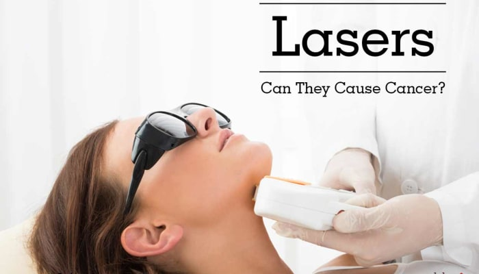 Lasers - Can They Cause Cancer?
