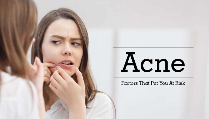 Acne - Factors That Put You At Risk