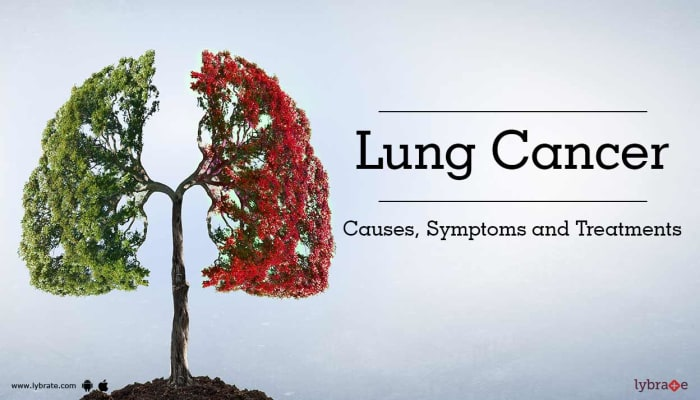 Lung Cancer: Causes, Symptoms and Treatments