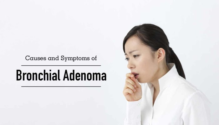 Causes and Symptoms of Bronchial Adenoma