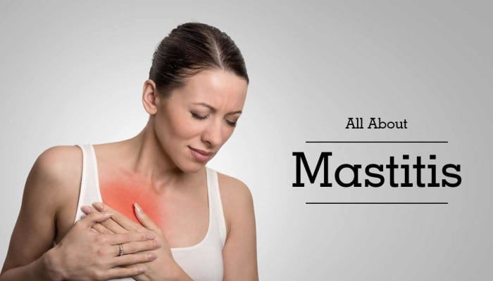 All About Mastitis