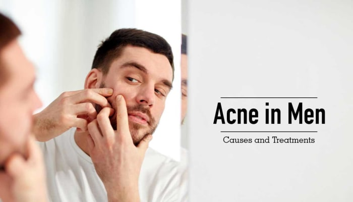 Acne in Men: Causes and Treatments