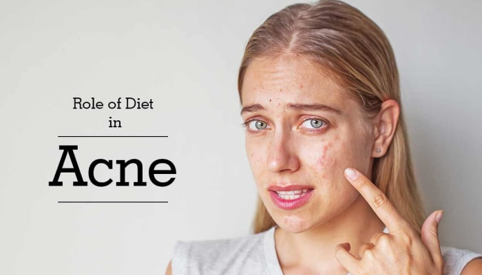 Role of Diet in Acne