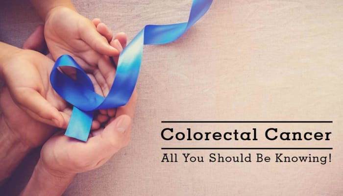 Colorectal Cancer - All You Should Be Knowing!