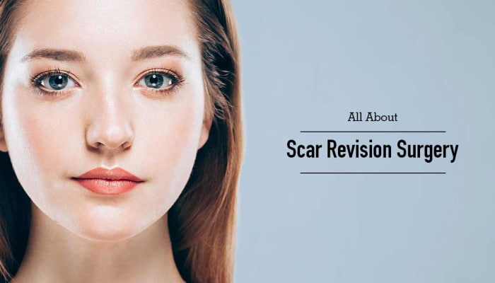 All About Scar Revision Surgery