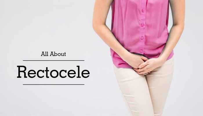 All About Rectocele