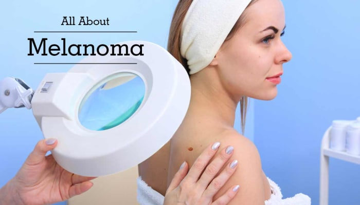 All About Melanoma