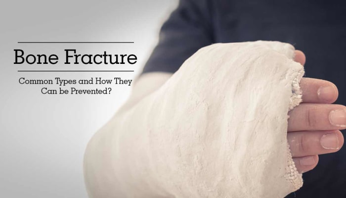 Bone Fracture - Common Types and How They Can be Prevented?