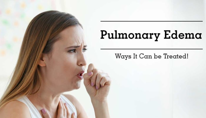 Pulmonary Edema - Ways It Can be Treated!