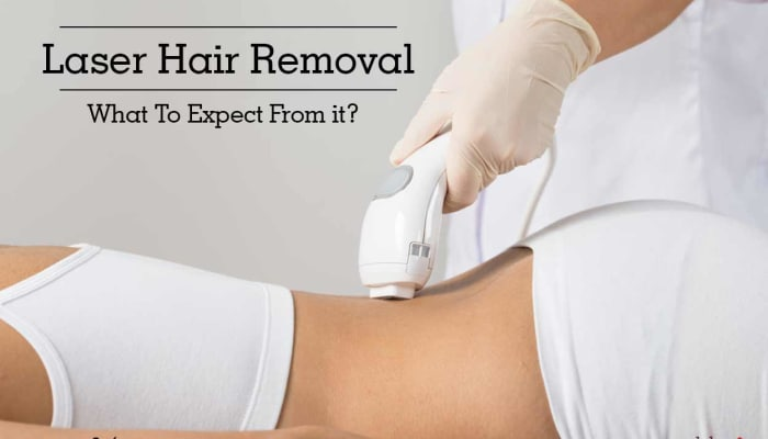 Laser Hair Removal - What To Expect From it?