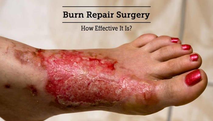 Burn Repair Surgery - How Effective It Is?