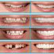 Smile Up Dental Care & Implant Center Image 5
