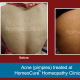 HomeoCure™ Homeopathy Clinic, Tilak Road Image 9