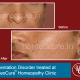 HomeoCure™ Homeopathy Clinic, Tilak Road Image 10