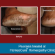 HomeoCure™ Homeopathy Clinic, Tilak Road Image 7