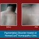 HomeoCure™ Homeopathy Clinic, Tilak Road Image 6