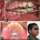 sai dental clinic Image 1