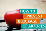 You can reduce the risk of blockage in your arteries by making certain changes in your diet and l...