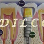 A Dental Implant Laser Cosmetic Centre Dr Viral Patel | Lybrate.com