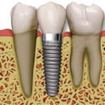 The Dentists   Lybrate.com