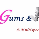 Gums & Implants, New Delhi