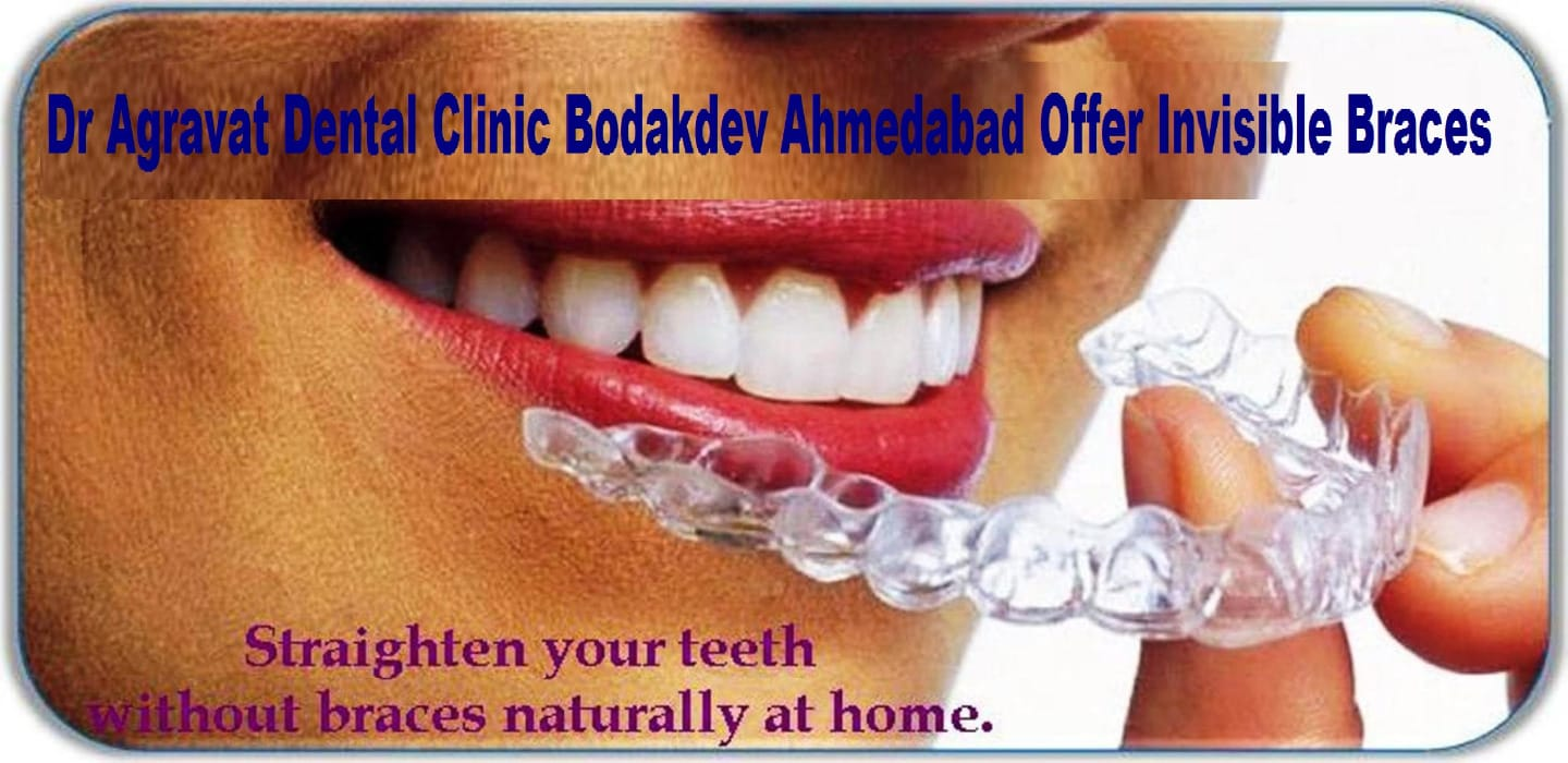 Dr  Bharat Agravat - Book Appointment, Consult Online, View