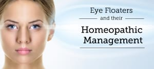 Eye Floaters: Treatment, Procedure, Cost, Recovery, Side